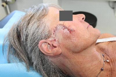 operation hudkræft