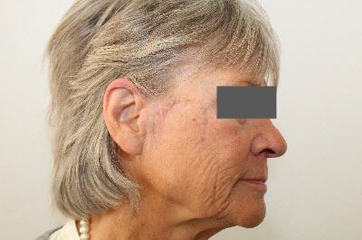 hudkræft ansigt